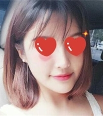 北京当代医疗美容面部埋线提升手术前后照片_术后