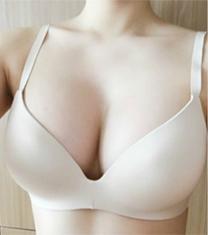 韩国next整形外科假体隆胸真人恢复日记