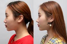 李炳浍在韩国做鼻子怎么样?有没有他主刀的案例照片?
