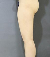 韩国爱林整形外科吸脂瘦大腿案例对比_术前