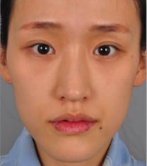 韩国sisun整形外科全脸填充案例对比
