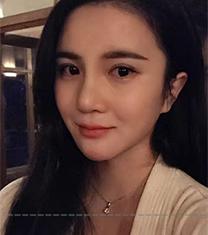 韩国sisun视线整形外科自体软骨隆鼻案例前后对比