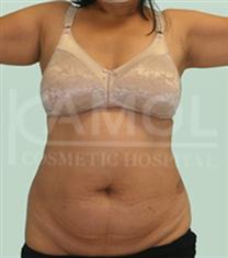 泰国咖蒙腹部吸脂前后对比案例