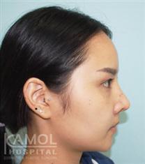 泰国咖蒙硅胶隆鼻案例图