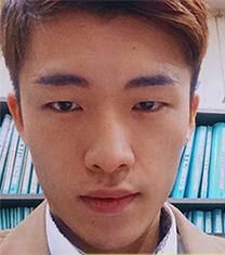 韩国sisun男生双眼皮手术真人自拍日记
