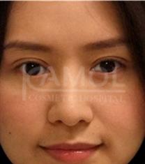 泰国咖蒙整形医院双眼皮案例对比
