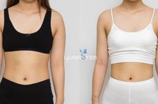 瘦人自体脂肪丰胸照片效果案例分享