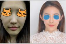 韩国车李郑家和友珍面部吸脂PK,谁技高一筹?