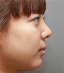 韩国江南DNA整形医院假体下巴整形案例