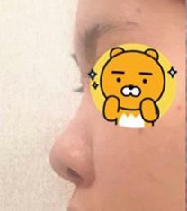 韩国差异chai整形外科鼻综合真人案例对比