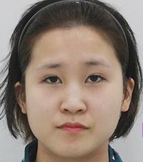 韩国一路美整形外科轮廓整形案例