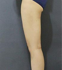 韩国爱林整形外科吸脂瘦大腿案例对比_术后