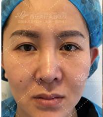 西安美好美容整形医院面部提升手术对比案例_术前