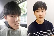 地包天怎么办,韩国now美整形医院透明双鄂手术了解一下!