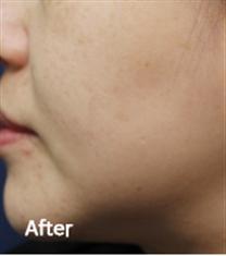 韩国美丽世界金阳济皮肤科祛斑案例