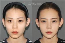 韩国拉菲安做面部轮廓贵吗?从案例效果看还算不错!