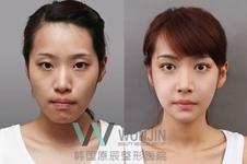 韩国原辰整形医院,隆胸和面部轮廓整形哪种手术更有名?
