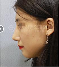 韩国BN驼峰鼻矫正前后案例自拍对比_术后