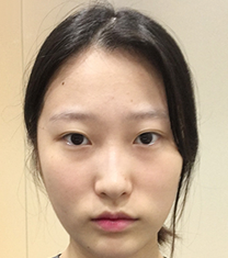 一路美整形外科隆鼻案例对比