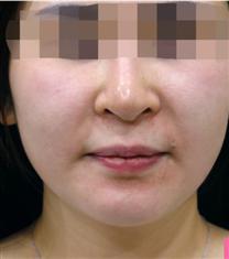 韩国美lab皮肤科埋线提升案例对比