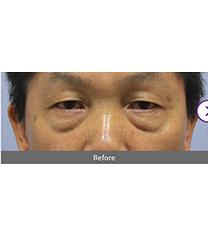 韩国BN去眼袋手术案例真人前后对比