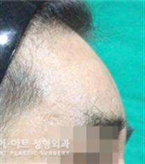 韩国K-art整形外科眉骨整形对比图_术后