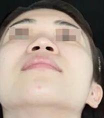 西安美好美容整形医院鼻孔整形手术对比案例