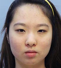 韩国you&lin眼鼻综合+面部吸脂真人手术恢复对比