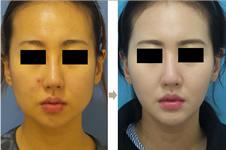 韩国迪美丽医院做面吸和芙莱思劳波尔比案例谁好看?