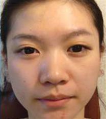 韩国高美恩整形医院脂肪填充案例对比