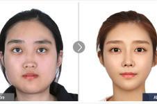 到韩国长曲线下颌角多少钱,和国内比大概贵多少?