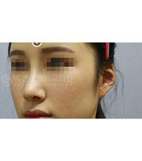 韩国BN整形外科鼻综合案例真人对比日记_术后