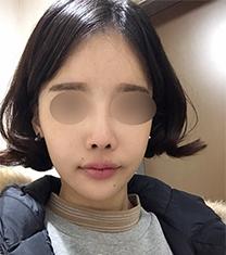 韩国Thenan自体肋软骨隆鼻真人案例分析_术前