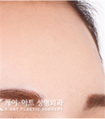 韩国K-art整形外科额头缩小整形案例