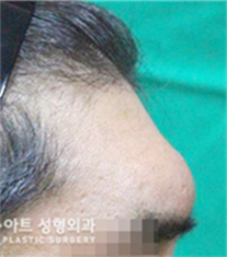 韩国K-art整形外科眉骨整形对比图_术前