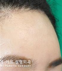 韩国K-art整形外科额头再手术整形案例