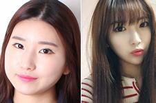韩国面吸4家网红医院介绍:迪美丽和丽颖整形上榜!