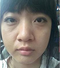 韩国世现整形外科鼻综合前后真人自拍案例_术前
