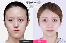 菲斯莱茵韩国人多不多,在首尔市口碑和原辰、id能比吗?