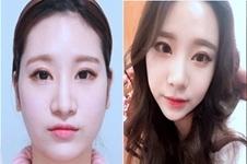 韩国佳轮韩整形医院面部轮廓手术口碑好吗?