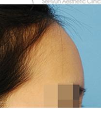 韩国世现整形外科玻尿酸填充额头案例对比