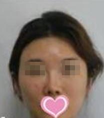 上海美尔雅整形医院鼻部修复手术案例
