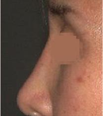 韩国SR整形外科隆鼻修复案例