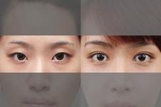韩国纯真整形医院和原辰整形医院哪家双眼皮效果比较好?