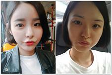 整形不动刀?韩国丽偶全脸脂肪填充,真人整形日记不能错过!