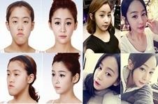 韩国ID整形医院和原辰整形医院哪家做轮廓手术效果更好?