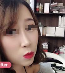 成都花田整形医院隆鼻手术案例_术后