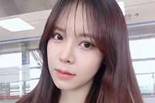 韩国VG百利酷PRP全脸脂肪填充+眼鼻综合第5天照片,效果惊艳!