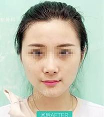 杭州瑞丽整形医院v-line手术案例