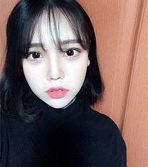 韩国you&lin眼鼻综合+面吸术后童颜脸案例分析_术后